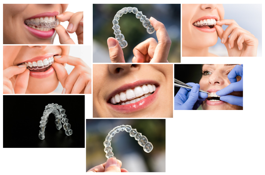 StaOrtho-Aligners-Ortodoncia-Invisible-Alineadores-Invisibles